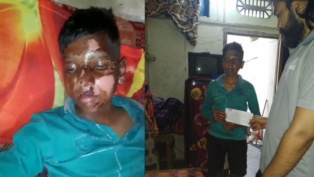 Acid Attack Survivor Thanks for Support | Riot Rehab