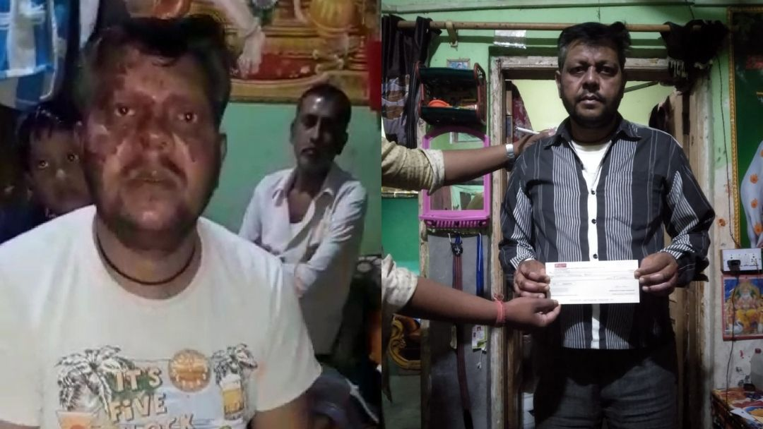Acid attack victim Narendra thanks for support | Riot Rehab