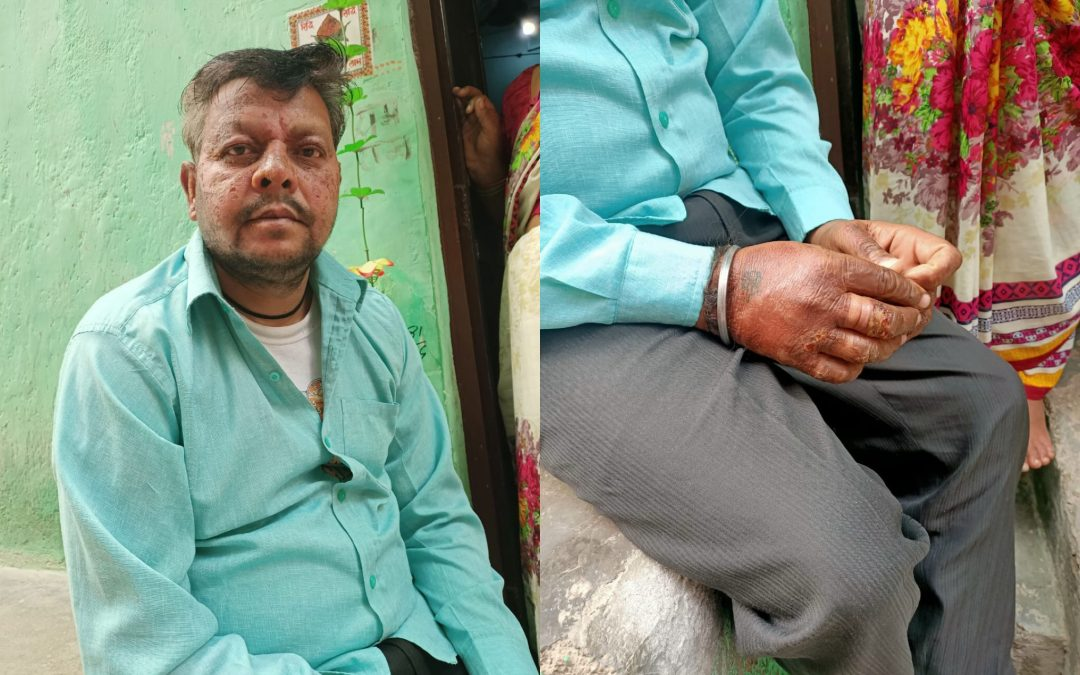 Momos Seller Who Suffered An Acid Attack During 2020 Delhi Riots, Gets Timely Monetary Help