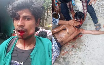 When We Helped Three Dalit Brothers Assaulted By A Mob With Medical Expenses And A Food Business